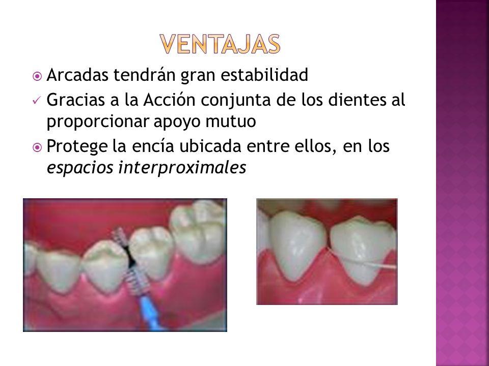 Arcadas tendrán gran estabilidad Gracias a la Acción conjunta de los dientes al proporcionar apoyo mutuo Protege la encía ubicada entre ellos, en los