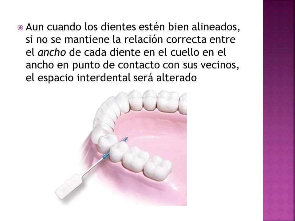 Aun cuando los dientes estén bien alineados, si no se mantiene la relación correcta entre el ancho de cada diente en el cuello en el ancho en punto de