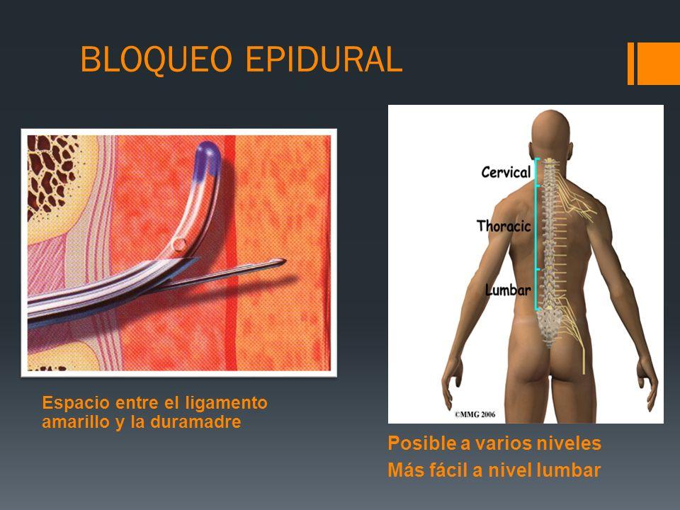 Posible a varios niveles Más fácil a nivel lumbar Espacio entre el ligamento amarillo y la duramadre BLOQUEO EPIDURAL