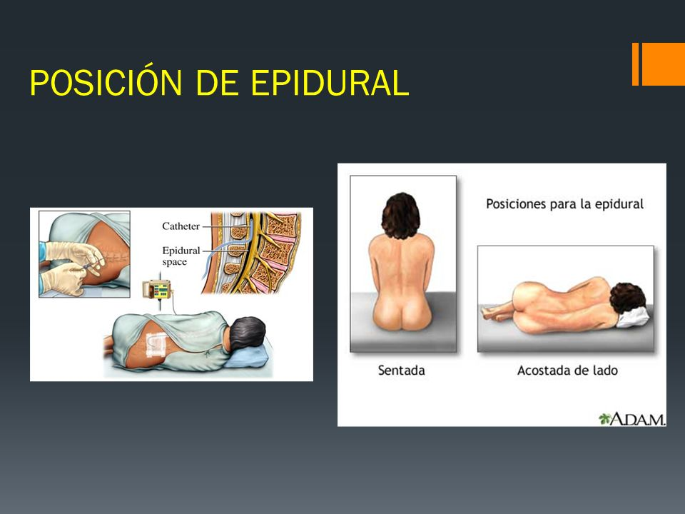 POSICIÓN DE EPIDURAL
