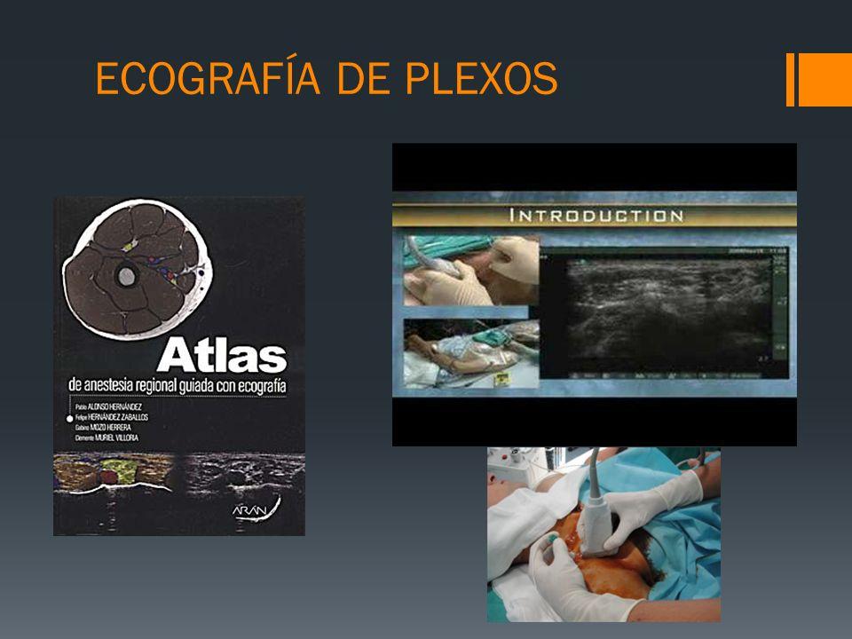 ECOGRAFÍA DE PLEXOS