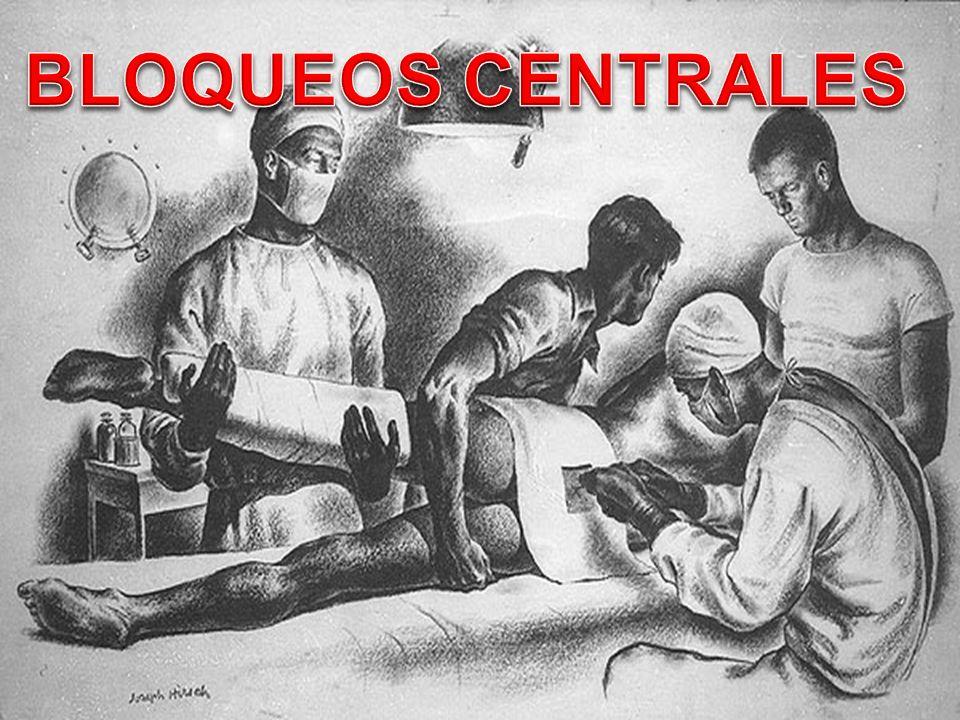 BLOQUEOS NERVIOSOS PERIFERICOS Indicados en cirugía OSTEO- ARTICULAR dolorosa Bloqueo INTERESCALÉNICO: Cirugía de HOMBRO Bloqueo POPLITEO: Cirugía de PIE ( hallux valgus) Bloqueo FEMORAL: Cirugía de RODILLA y cadera (prótesis)
