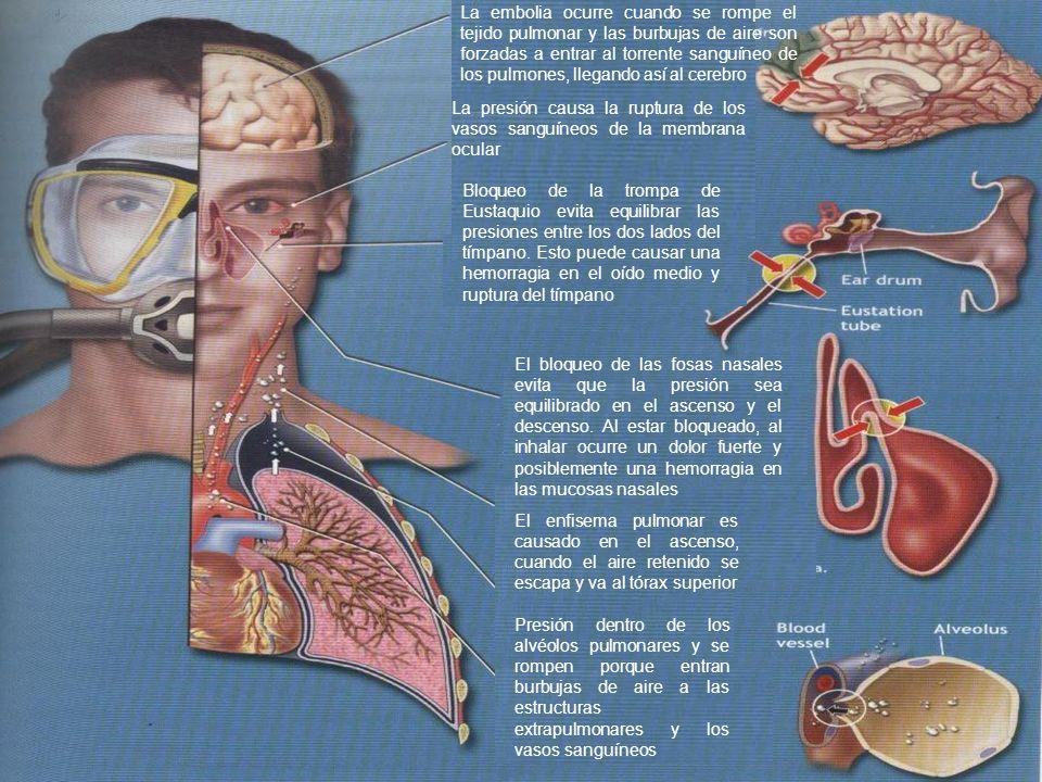 La embolia ocurre cuando se rompe el tejido pulmonar y las burbujas de aire son forzadas a entrar al torrente sanguíneo de los pulmones, llegando así al cerebro El enfisema pulmonar es causado en el ascenso, cuando el aire retenido se escapa y va al tórax superior La presión causa la ruptura de los vasos sanguíneos de la membrana ocular Bloqueo de la trompa de Eustaquio evita equilibrar las presiones entre los dos lados del tímpano.