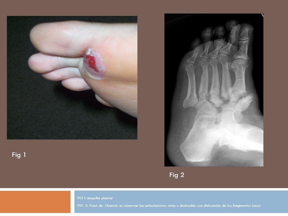 FIG !: ampolla plantar FIG 2: Fract de Charcot: se observan las articulaciones rotas o destruidas con dislocación de los fragmentos óseos Fig 1 Fig 2