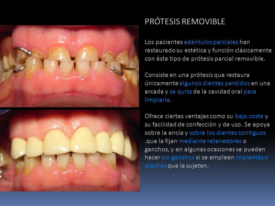 PRÓTESIS REMOVIBLE Los pacientes edéntulos parciales han restaurado su estética y función clásicamente con éste tipo de prótesis parcial removible. Co