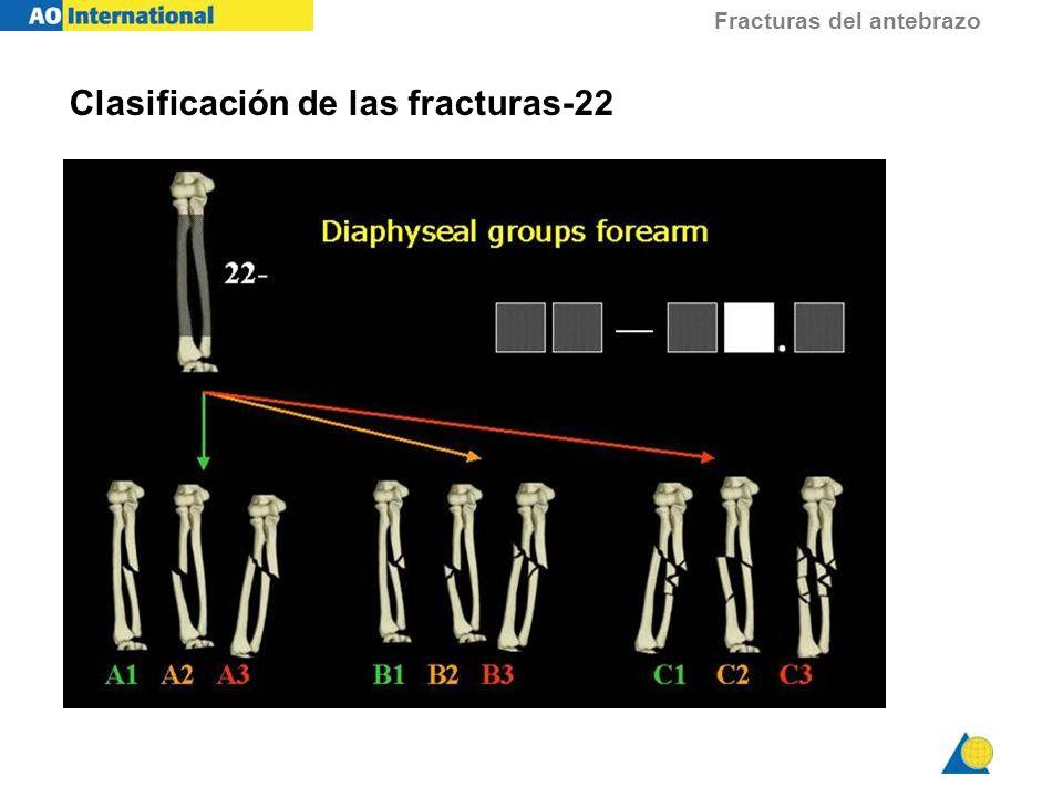 Fracturas del antebrazo Clasificación de las fracturas-22