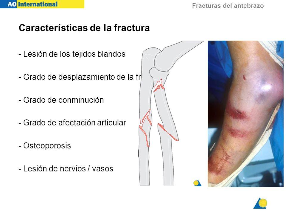 Fracturas del antebrazo Características de la fractura - Lesión de los tejidos blandos - Grado de desplazamiento de la fractura - Grado de conminución