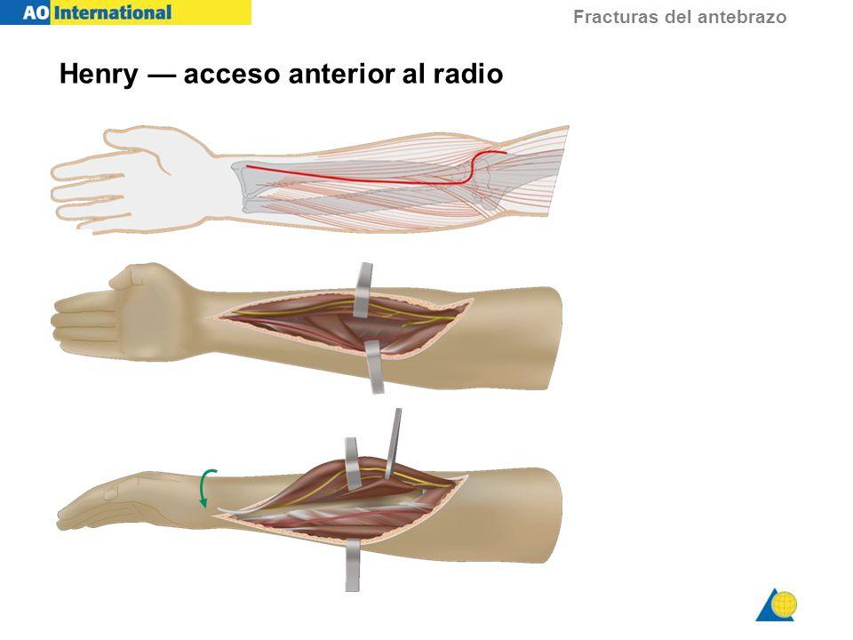 Fracturas del antebrazo Approach Henry acceso anterior al radio