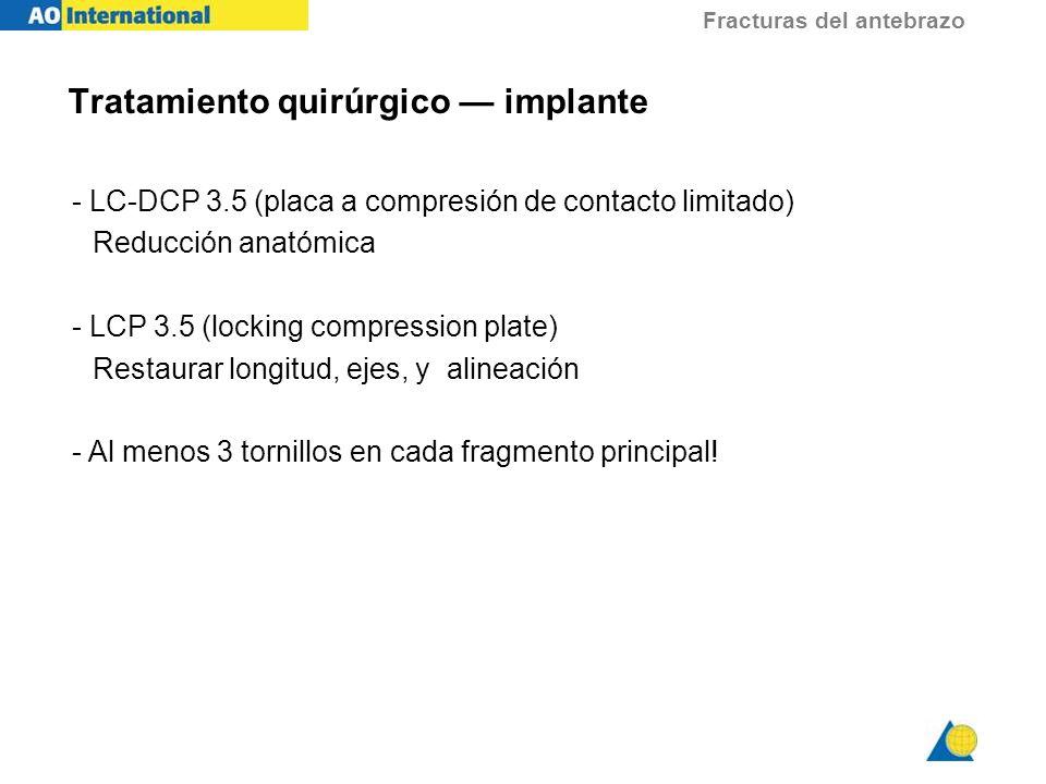 Fracturas del antebrazo - LC-DCP 3.5 (placa a compresión de contacto limitado) Reducción anatómica - LCP 3.5 (locking compression plate) Restaurar lon