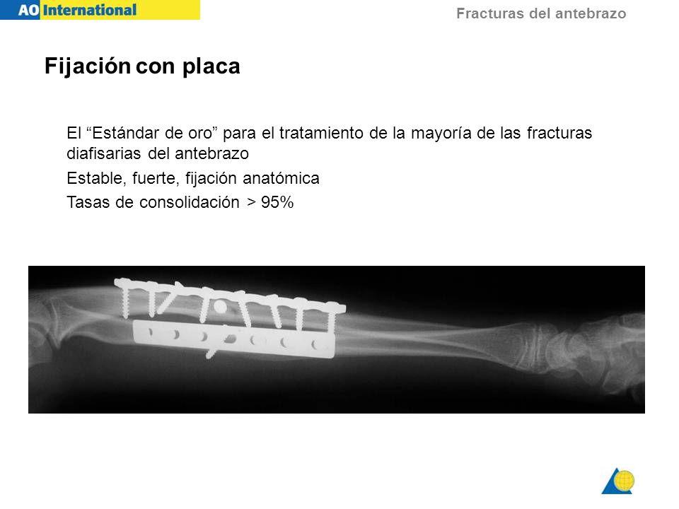 Fracturas del antebrazo El Estándar de oro para el tratamiento de la mayoría de las fracturas diafisarias del antebrazo Estable, fuerte, fijación anat