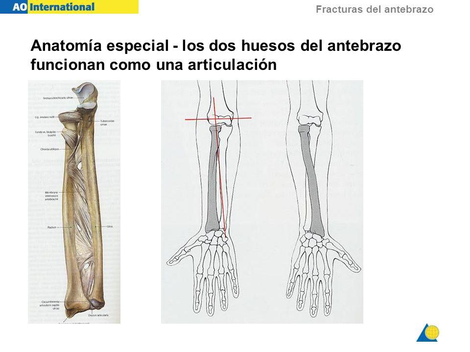 Fracturas del antebrazo El Estándar de oro para el tratamiento de la mayoría de las fracturas diafisarias del antebrazo Estable, fuerte, fijación anatómica Tasas de consolidación > 95% Fijación con placa