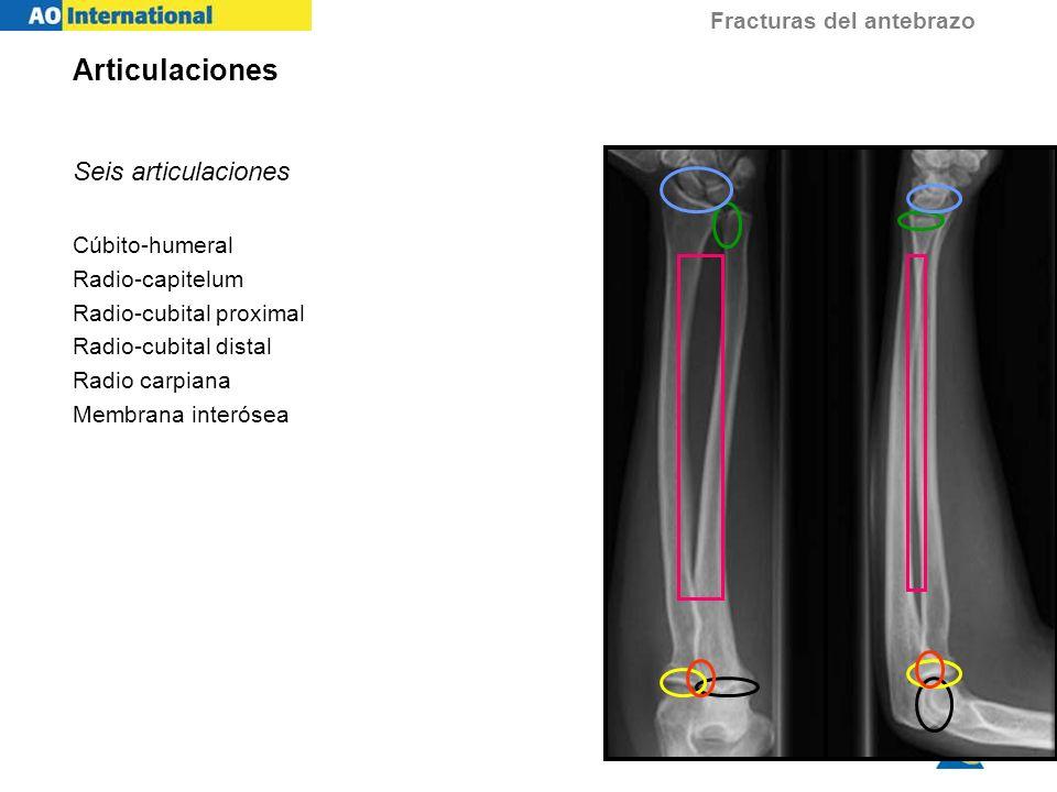 Fracturas del antebrazo Reducción anatómica Restaurar la longitud del cúbito y radio Reducir y estabilizar las articulaciones Restaurar la alineación rotacional Reparar las lesiones de los tejidos blandos Recuperar una función normal Objetivos del tratamiento