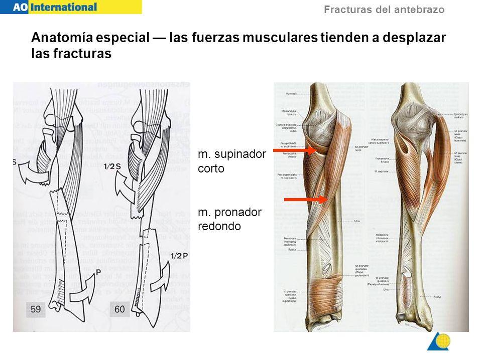 Fracturas del antebrazo Anatomía especial las fuerzas musculares tienden a desplazar las fracturas m. supinador corto m. pronador redondo
