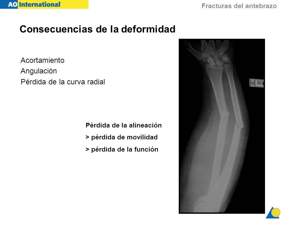 Fracturas del antebrazo Mecanismo de las fracturas - Compresión axial - Flexión - Rotación - Traumatismo directo