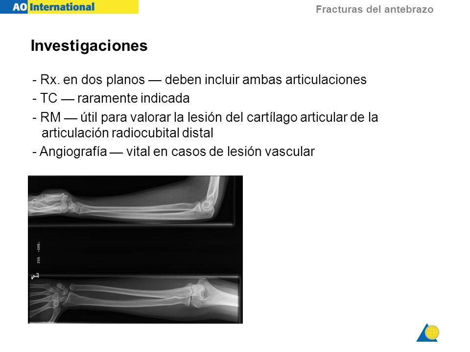 Fracturas del antebrazo Investigaciones - Rx. en dos planos deben incluir ambas articulaciones - TC raramente indicada - RM útil para valorar la lesió