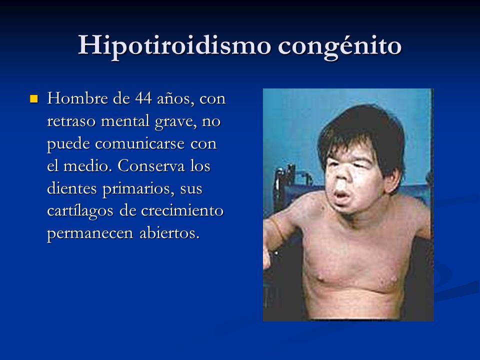 Hipotiroidismo congénito Hombre de 44 años, con retraso mental grave, no puede comunicarse con el medio. Conserva los dientes primarios, sus cartílago