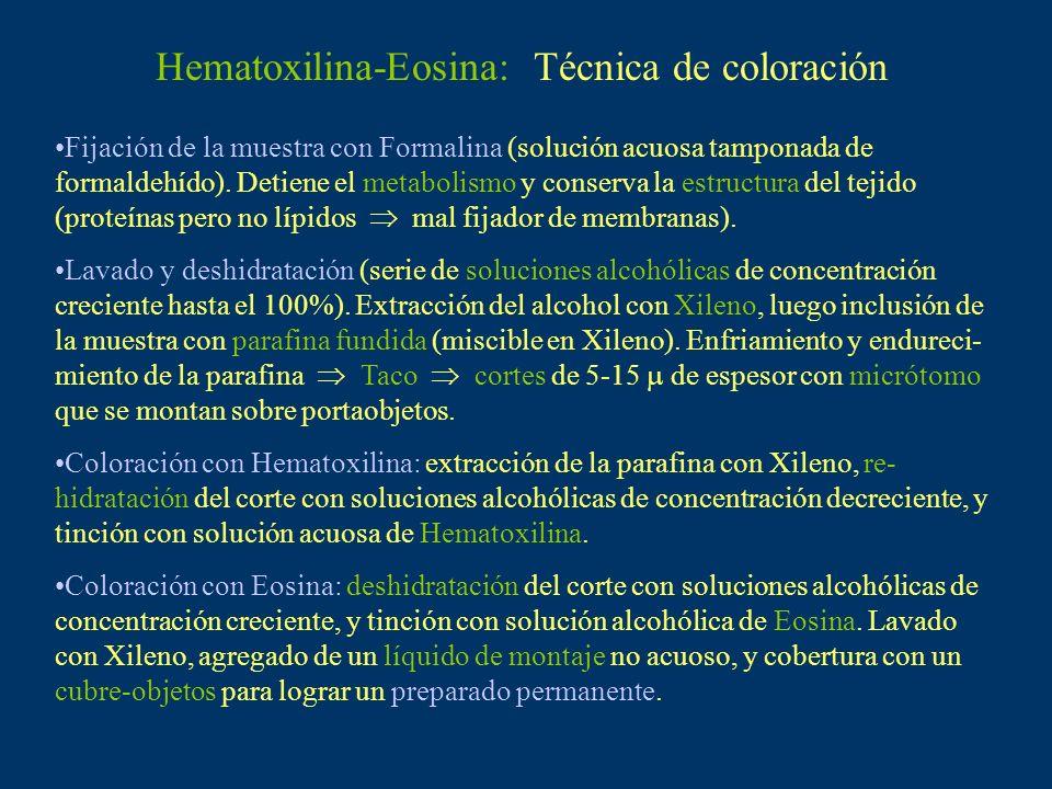 Hematoxilina-Eosina: Técnica de coloración Fijación de la muestra con Formalina (solución acuosa tamponada de formaldehído). Detiene el metabolismo y