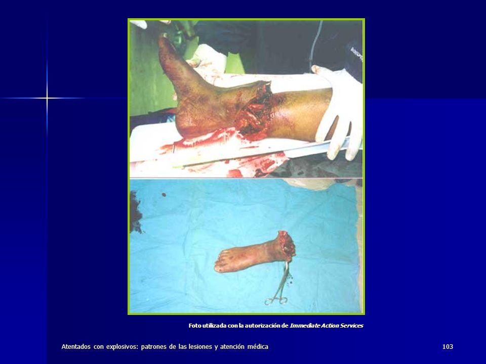Atentados con explosivos: patrones de las lesiones y atención médica103 Foto utilizada con la autorización de Immediate Action Services