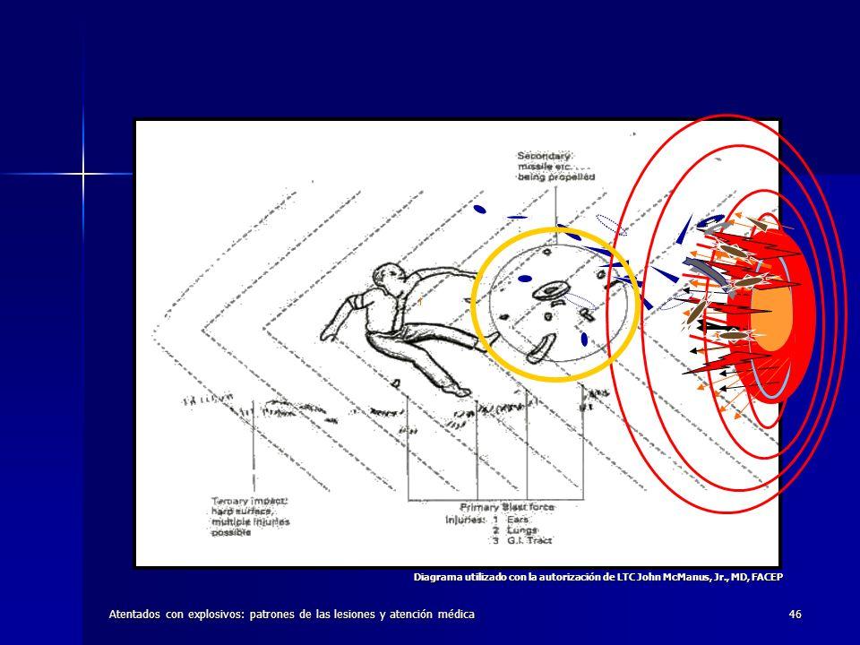 Atentados con explosivos: patrones de las lesiones y atención médica46 Diagrama utilizado con la autorización de LTC John McManus, Jr., MD, FACEP