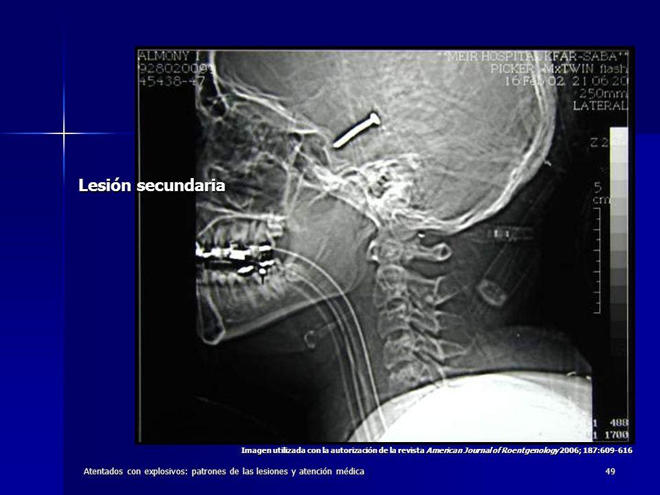 Atentados con explosivos: patrones de las lesiones y atención médica49 Lesión secundaria Imagen utilizada con la autorización de la revista American J