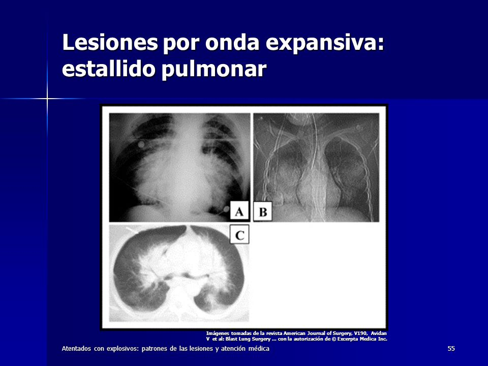 Atentados con explosivos: patrones de las lesiones y atención médica55 Lesiones por onda expansiva: estallido pulmonar Imágenes tomadas de la revista