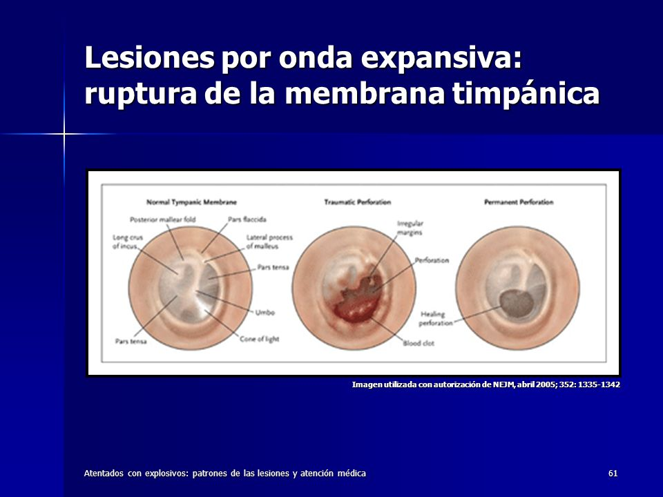 Atentados con explosivos: patrones de las lesiones y atención médica61 Lesiones por onda expansiva: ruptura de la membrana timpánica Imagen utilizada