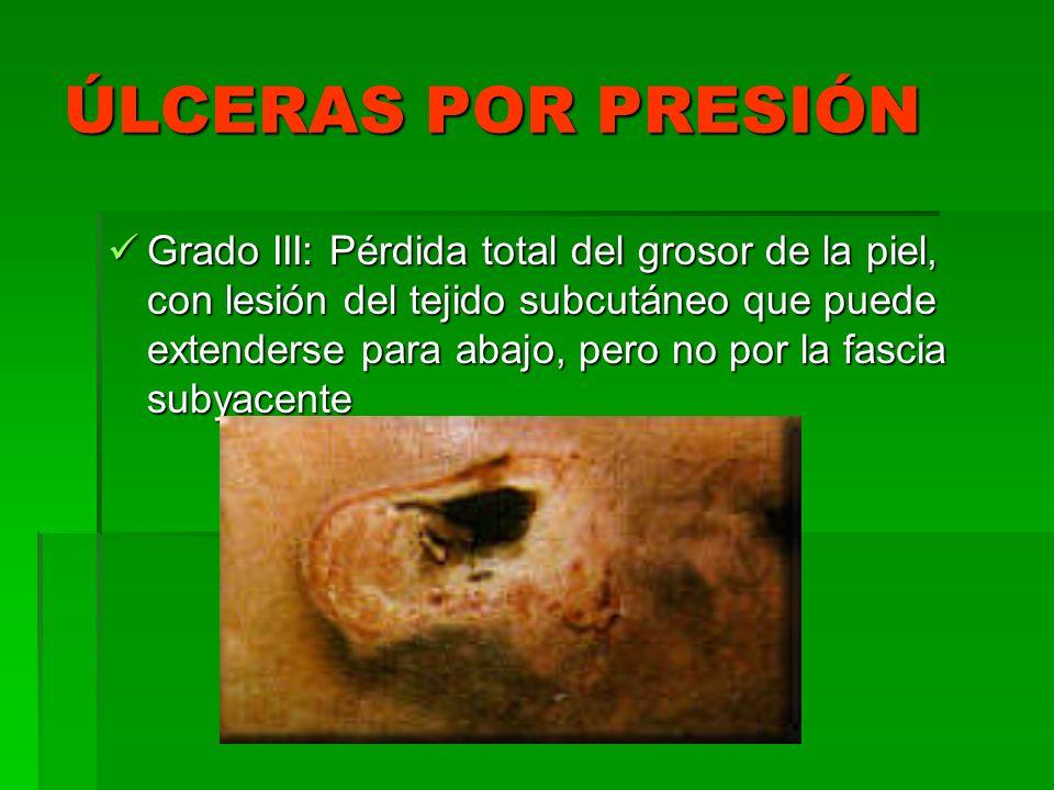 ÚLCERAS POR PRESIÓN Grado III: Pérdida total del grosor de la piel, con lesión del tejido subcutáneo que puede extenderse para abajo, pero no por la f