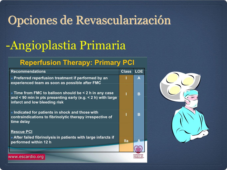 Opciones de Revascularización -Angioplastia Primaria
