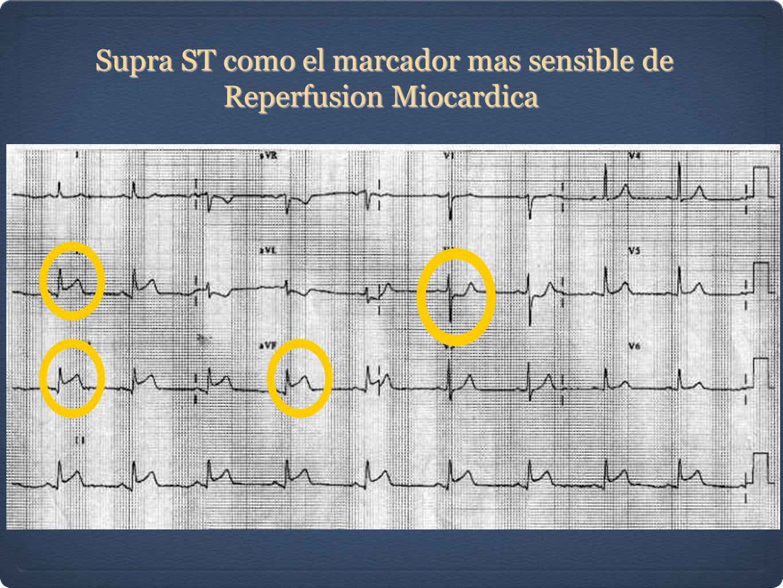 Supra ST como el marcador mas sensible de Reperfusion Miocardica Supra ST como el marcador mas sensible de Reperfusion Miocardica