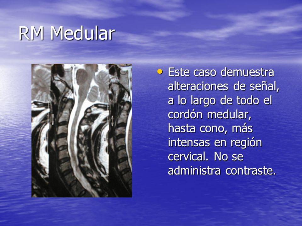 RM Medular Este caso demuestra alteraciones de señal, a lo largo de todo el cordón medular, hasta cono, más intensas en región cervical. No se adminis