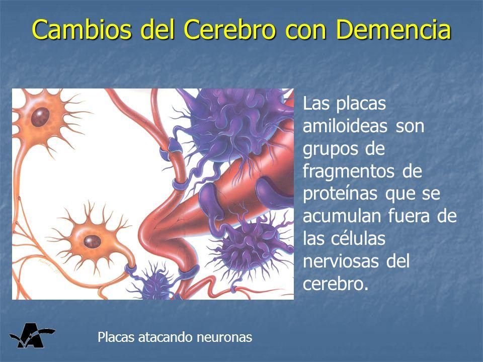 Cambios del Cerebro con Demencia Las placas amiloideas son grupos de fragmentos de proteínas que se acumulan fuera de las células nerviosas del cerebr