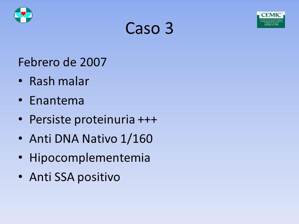 Caso 3 Tratamiento con: Meprednisona 40 mg por día Hidroxicloroquina 200 mg por día Azatioprina 150 mg por día (Suspende por hepatitis tóxica) Taperin