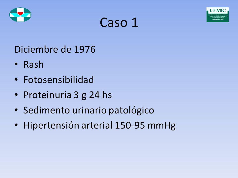 Caso 1 Serología: FAN positivo 1/1000 Ho Pe Anti DNA Nativo positivo CH50 disminuído PBR: GNPD Clase IV Diagnóstico de LES: Tratamiento con 40 mg de M