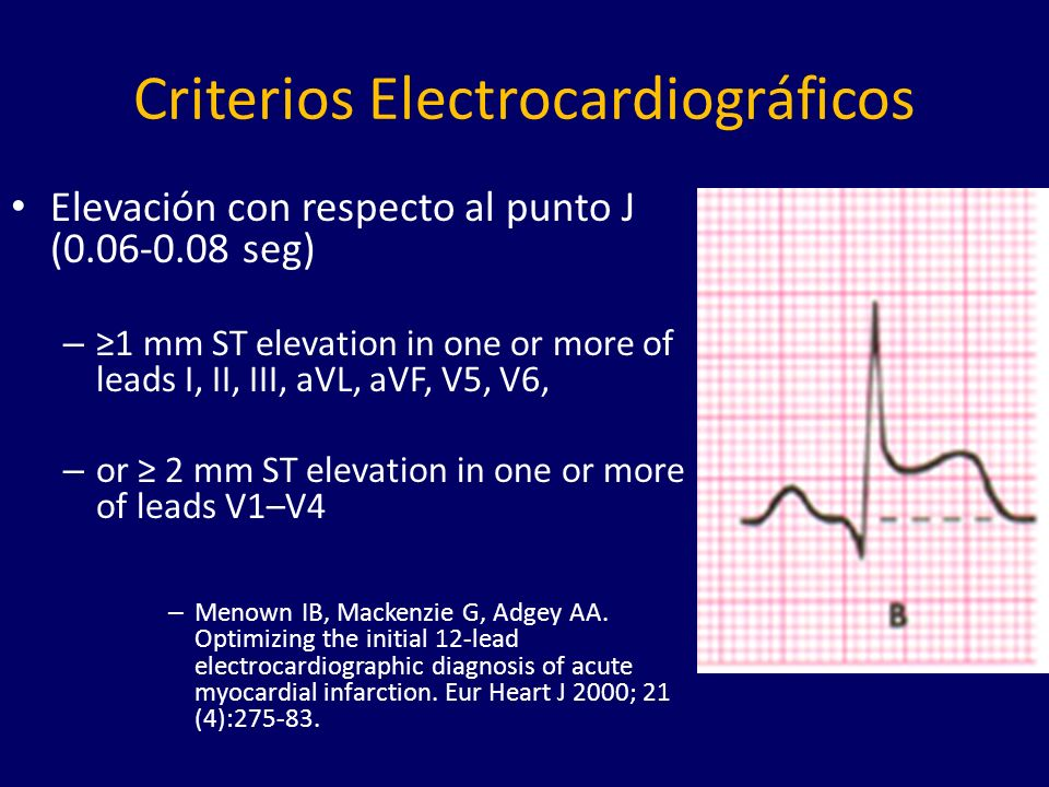 Criterios Electrocardiográficos Elevación con respecto al punto J (0.06-0.08 seg) – 1 mm ST elevation in one or more of leads I, II, III, aVL, aVF, V5
