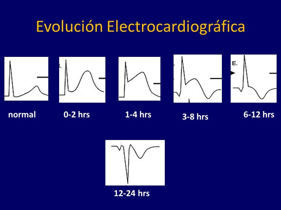 Evolución Electrocardiográfica normal0-2 hrs1-4 hrs 3-8 hrs 6-12 hrs 12-24 hrs