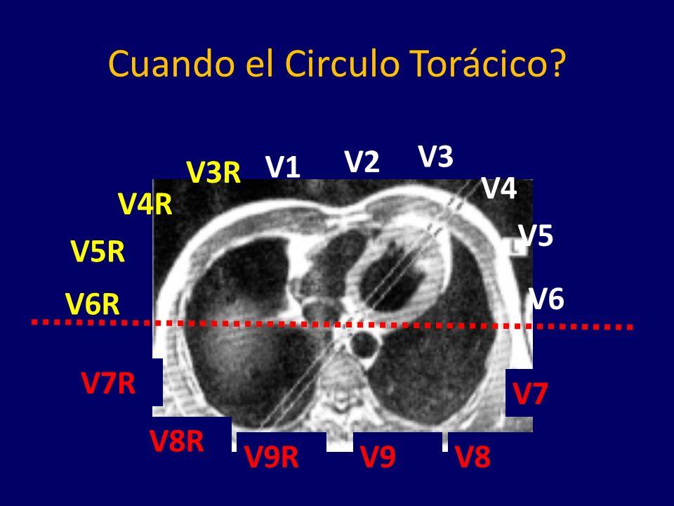 Cuando el Circulo Torácico? V9R V1 V2 V3 V4 V5 V6 V7 V8V9 V3R V4R V5R V6R V7R V8R