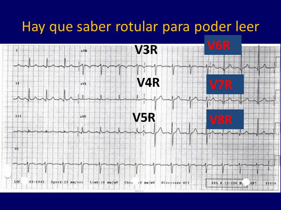 Hay que saber rotular para poder leer V3R V4R V5R V6R V7R V8R