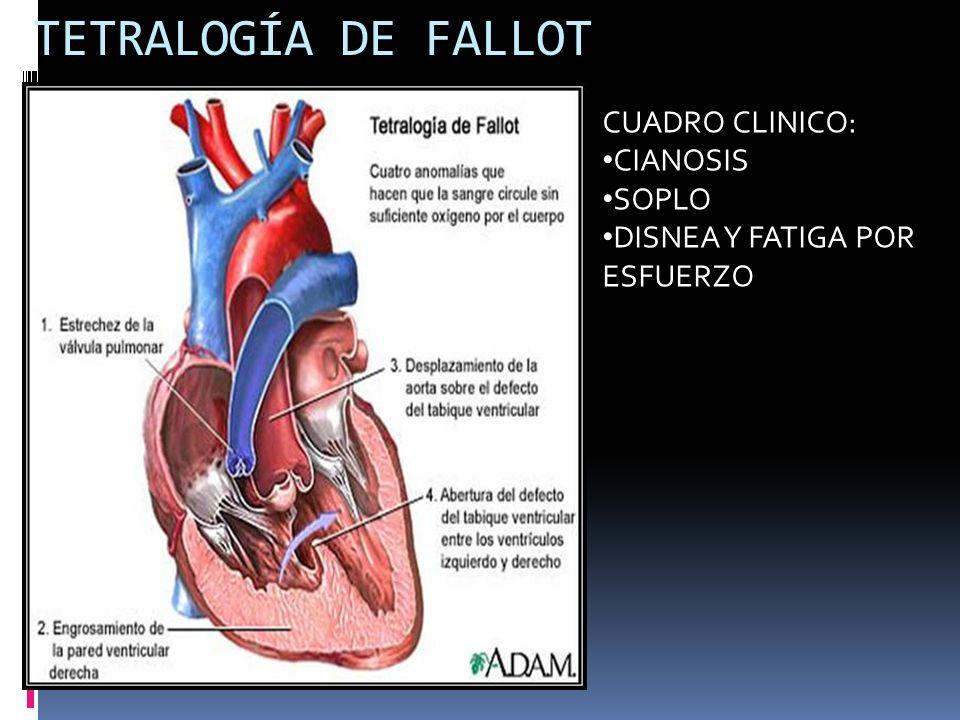 TETRALOGÍA DE FALLOT CUADRO CLINICO: CIANOSIS SOPLO DISNEA Y FATIGA POR ESFUERZO