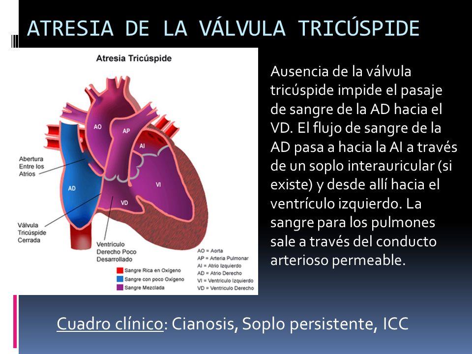 ATRESIA DE LA VÁLVULA TRICÚSPIDE Ausencia de la válvula tricúspide impide el pasaje de sangre de la AD hacia el VD. El flujo de sangre de la AD pasa a