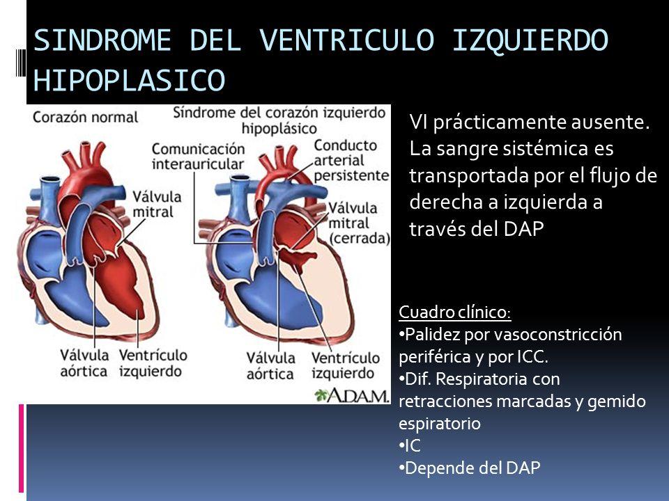 SINDROME DEL VENTRICULO IZQUIERDO HIPOPLASICO VI prácticamente ausente. La sangre sistémica es transportada por el flujo de derecha a izquierda a trav