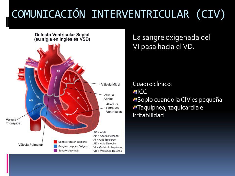COMUNICACIÓN INTERVENTRICULAR (CIV) La sangre oxigenada del VI pasa hacia el VD. Cuadro clínico: ICC Soplo cuando la CIV es pequeña Taquipnea, taquica