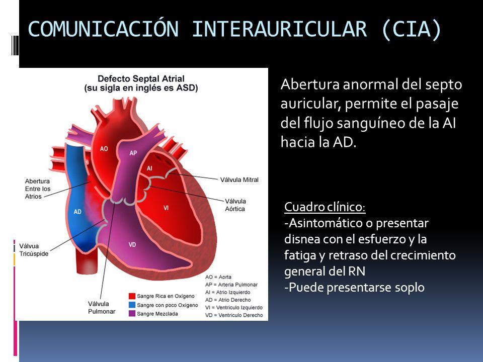 COMUNICACIÓN INTERAURICULAR (CIA) Abertura anormal del septo auricular, permite el pasaje del flujo sanguíneo de la AI hacia la AD. Cuadro clínico: -A