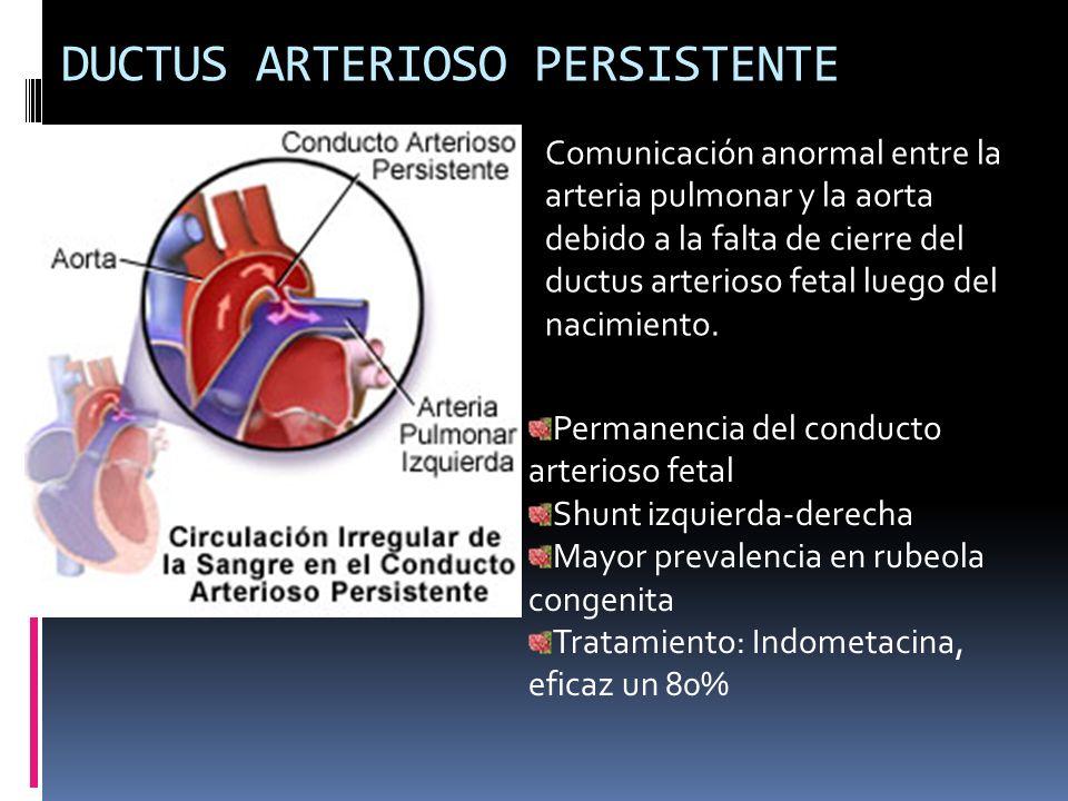DUCTUS ARTERIOSO PERSISTENTE Comunicación anormal entre la arteria pulmonar y la aorta debido a la falta de cierre del ductus arterioso fetal luego de