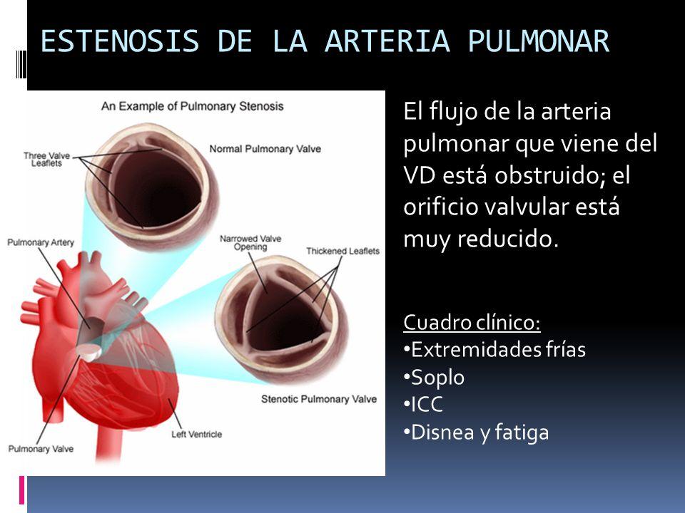 ESTENOSIS DE LA ARTERIA PULMONAR El flujo de la arteria pulmonar que viene del VD está obstruido; el orificio valvular está muy reducido. Cuadro clíni