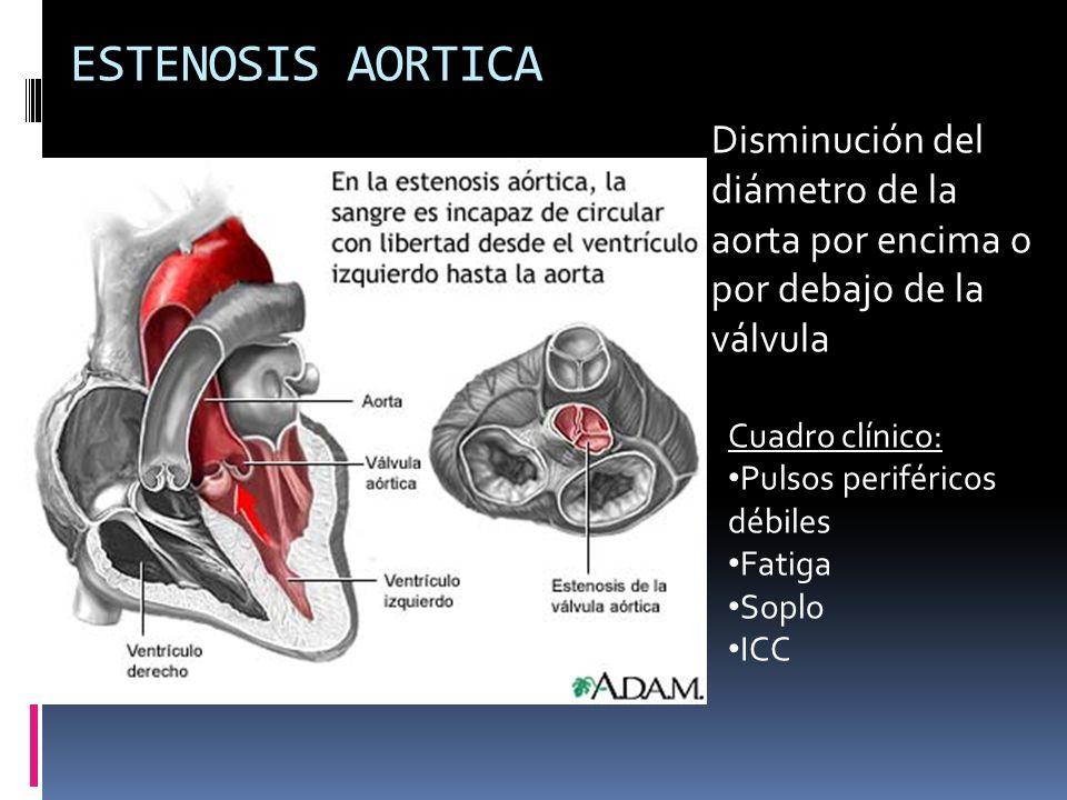 ESTENOSIS AORTICA Disminución del diámetro de la aorta por encima o por debajo de la válvula Cuadro clínico: Pulsos periféricos débiles Fatiga Soplo I