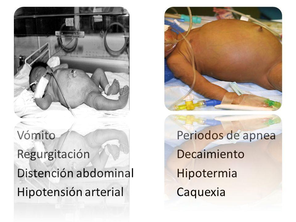 Vómito Regurgitación Distención abdominal Hipotensión arterial Periodos de apnea Decaimiento Hipotermia Caquexia