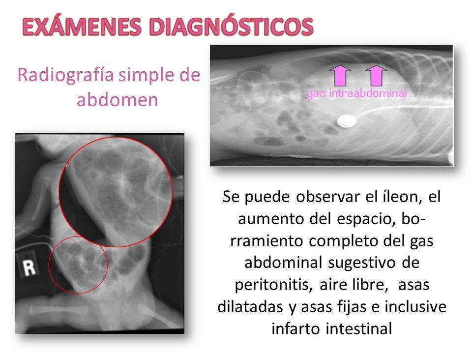 Radiografía simple de abdomen Se puede observar el íleon, el aumento del espacio, bo- rramiento completo del gas abdominal sugestivo de peritonitis, a