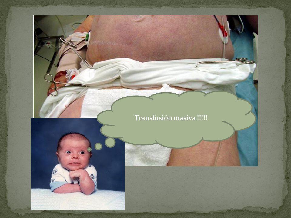 Transfusión masiva !!!!!