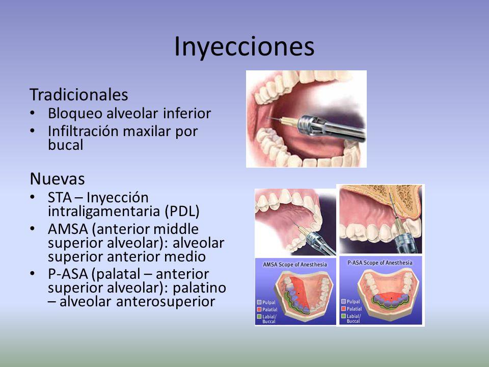 Sistema STA Aplicacion en la Practica Por Dentistria Pediatrica… Demonstrado clinicamente a reducir significativamente el mal comportamiento de los ni