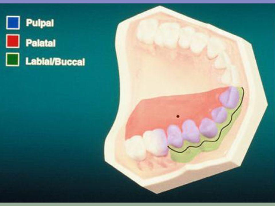 Técnica de Inyección AMSA Anterior Middle Superior Alveolar Alveolar Superior Anterior Medio Una inyección para múltiples dientes maxilares: de incisi